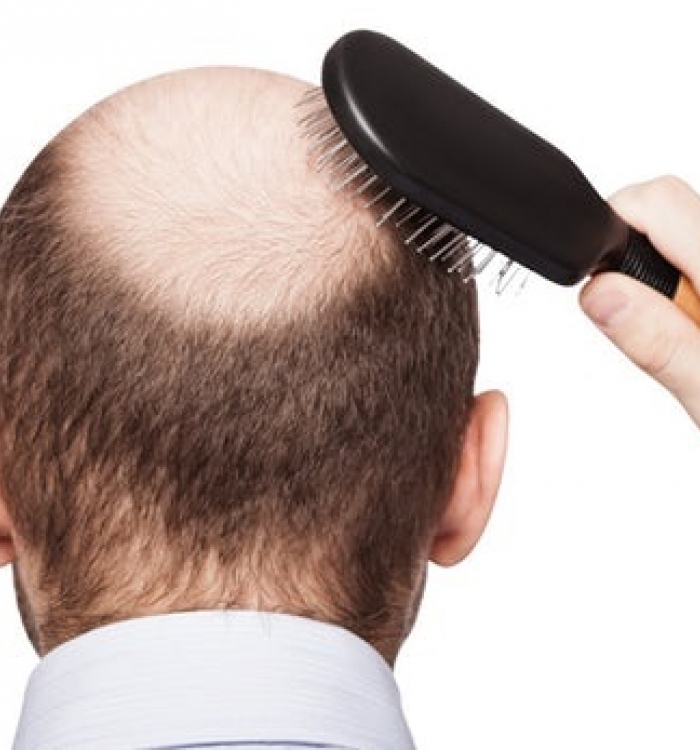Erkeklerde Saç Dökülmesi Neden Olur ?