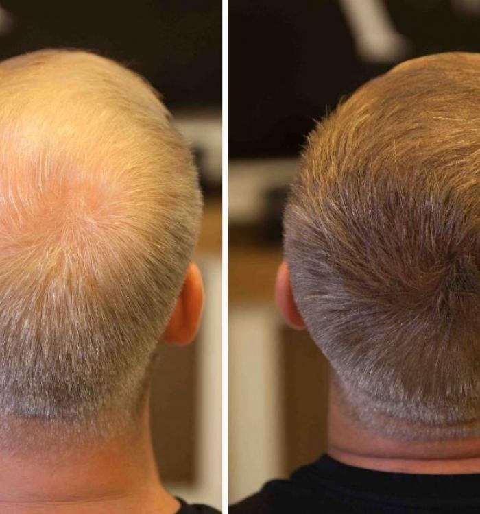 Saç Fiberleri ile Daha Kalın ve Gür Saçlara Sahip Olmak Mümkün!